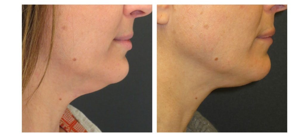 Cosmetic Dermatology Before & After - Kybella