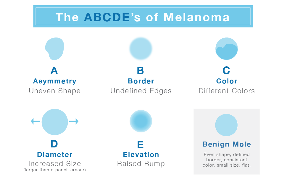 What is Melanoma? Learn How to Spot Its Early Symptoms